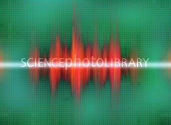 Sound Byte on Grid